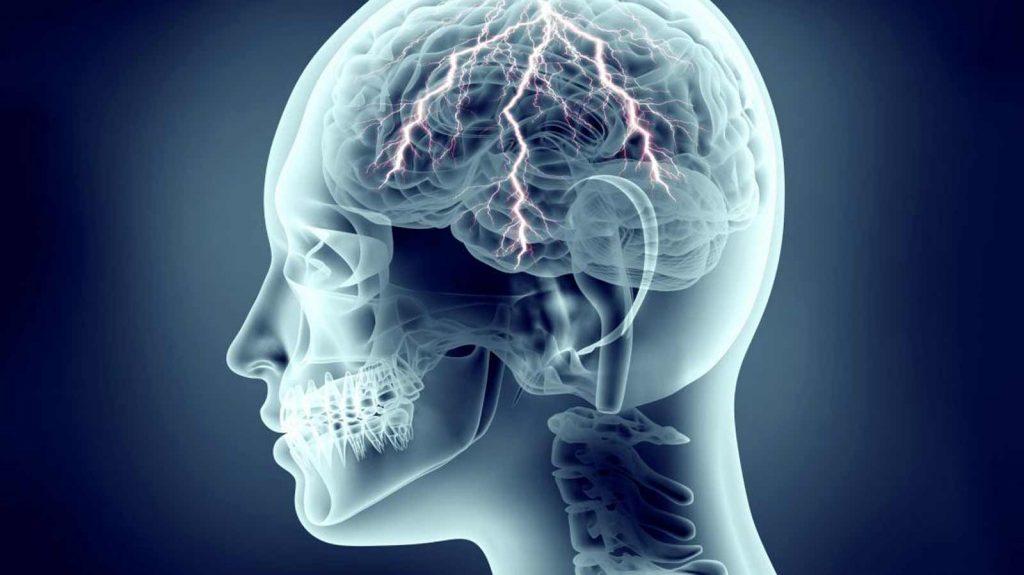 تست نوار مغز برای تشنج و صرع