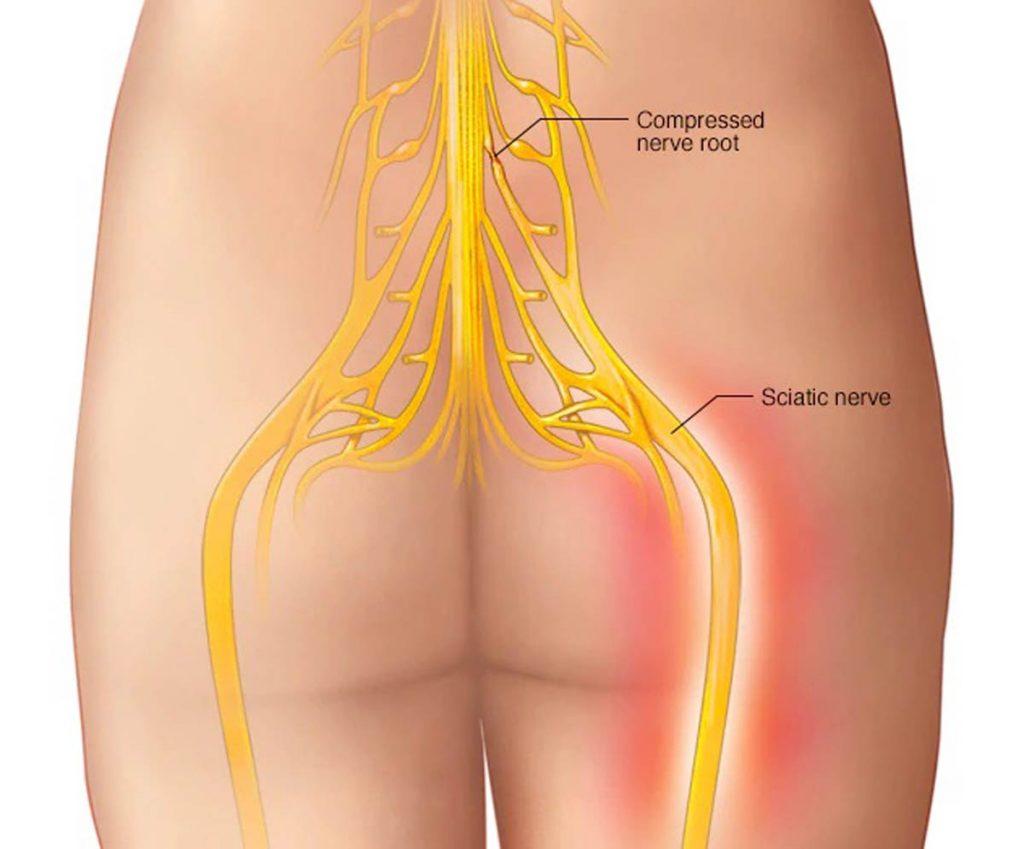 عصب سیاتیک علت درد باسن