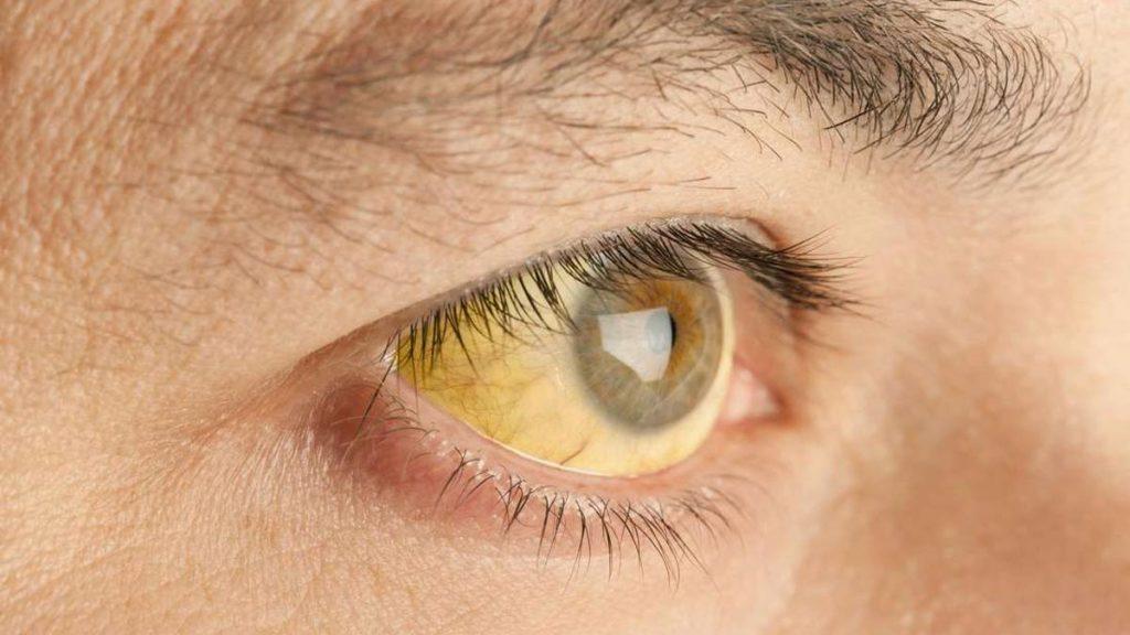 زردی چشم یا یرقان