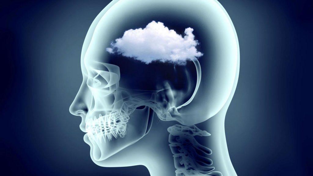 مغز مه آلود