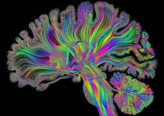 متخصص مغز - پیچیدگی مغز