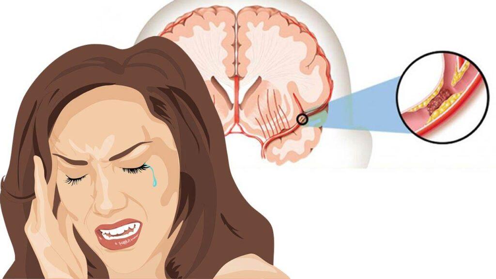 ویژگی های سکته مغزی خاموش