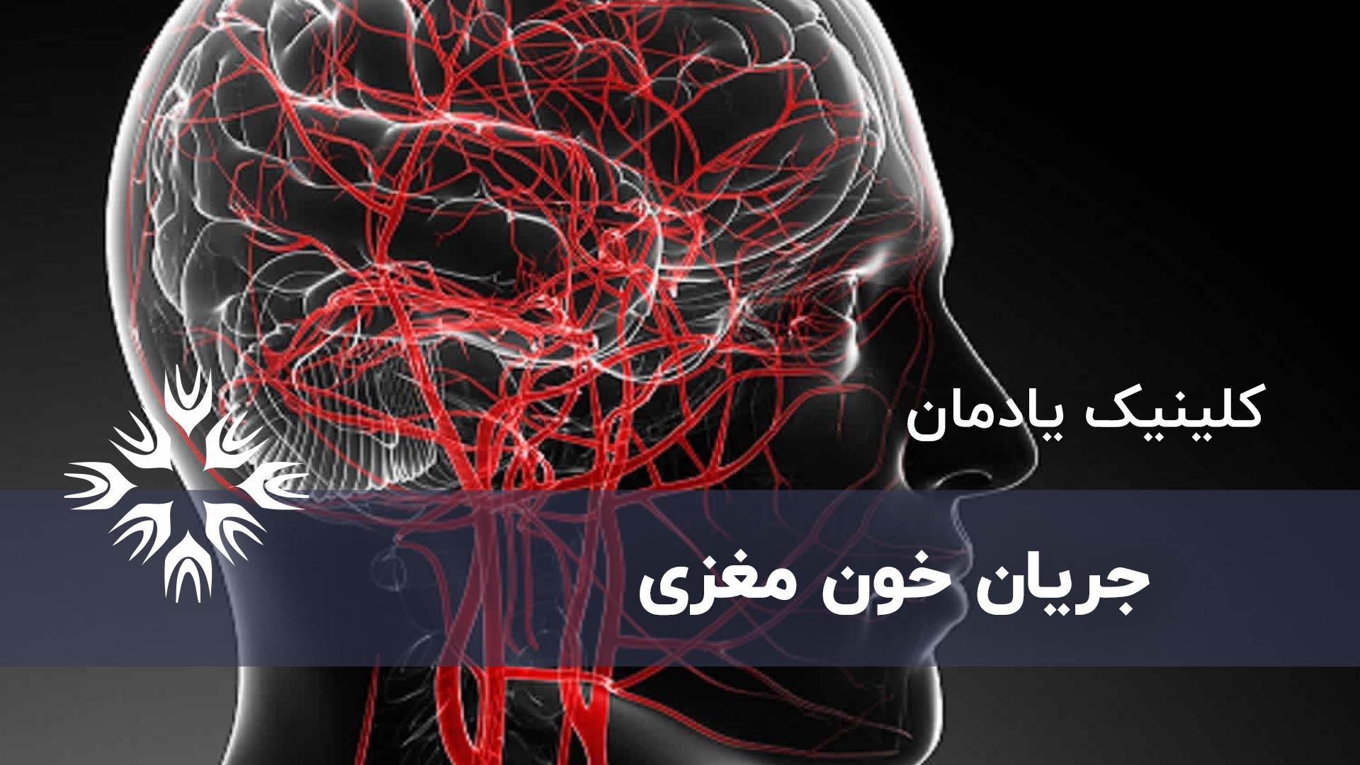 گردش خون مغزی