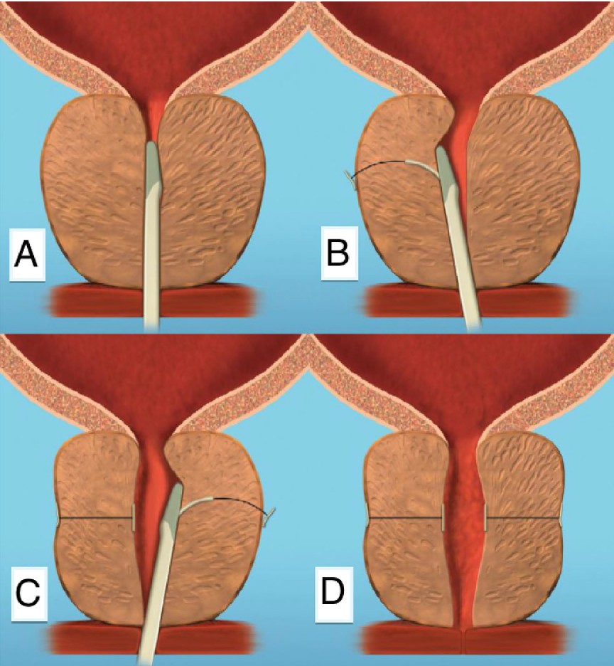 بالا کشیدن پروستات از طریق مجرای ادراری (PUL)