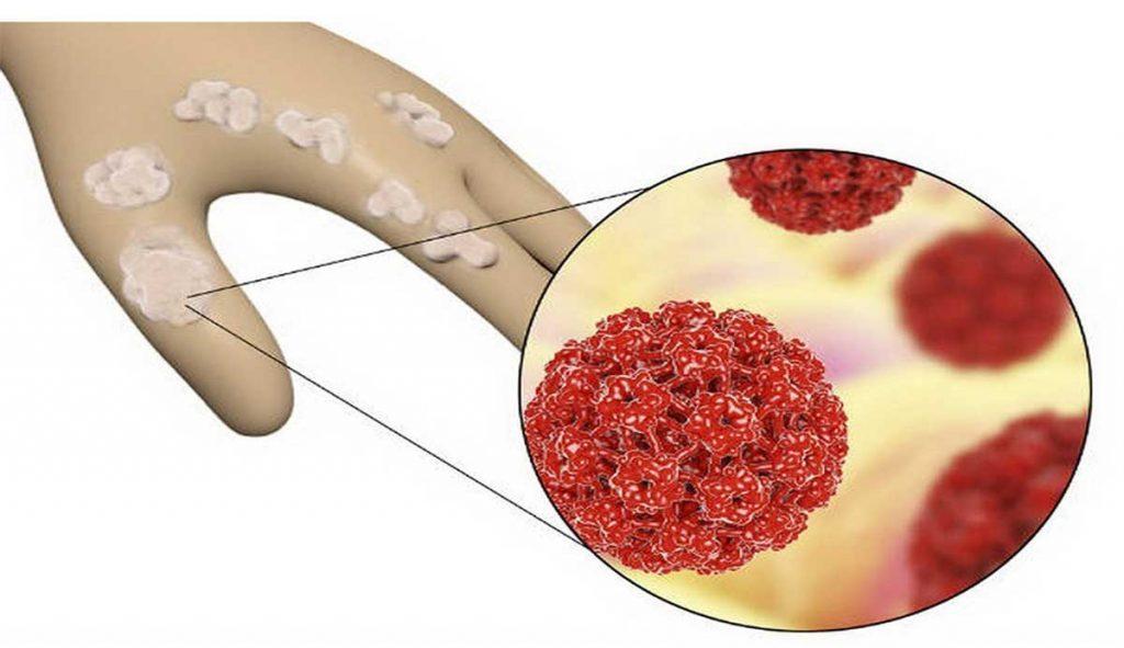 زگیل تناسلی و عفونت اچ پی وی