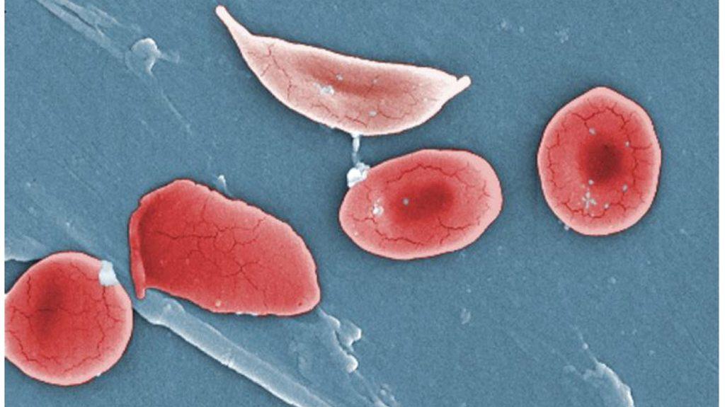 کم خونی داسی شکل و یرقان