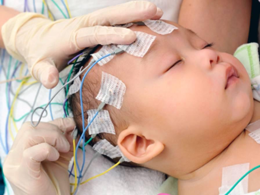 تست نوار عصب و عضله برای کودک