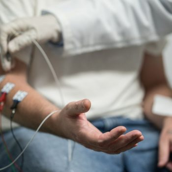 نوار عصب و عضله برای تشخیص ام اس